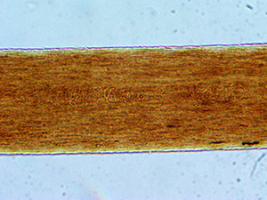 what_does_hair_look_like_under_a_microscope_01